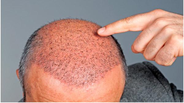 Como é feito o transplante de cabelo